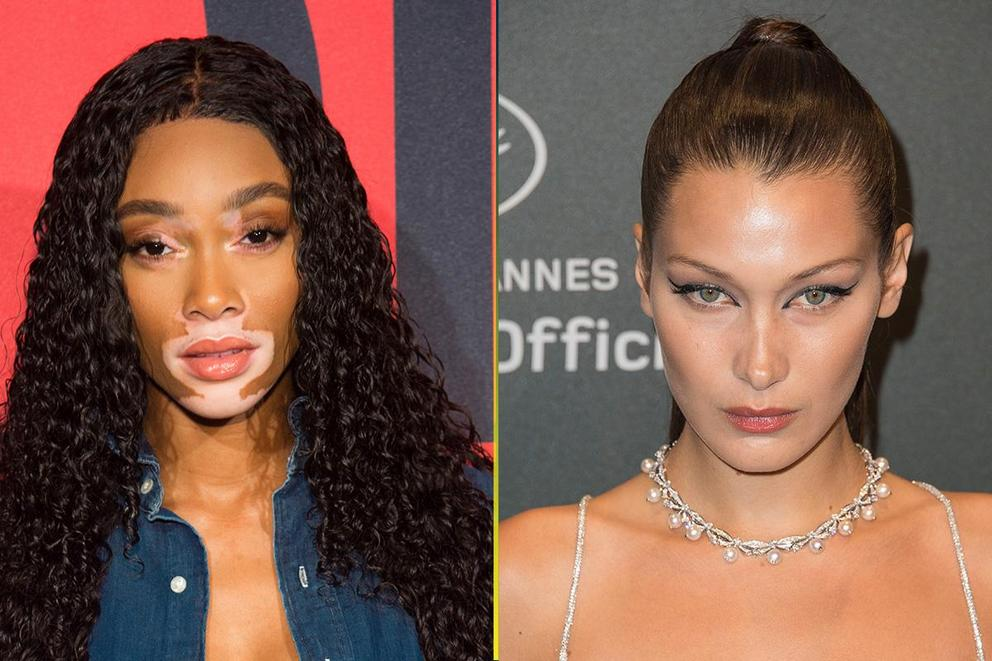 Favorite supermodel: Winnie Harlow or Bella Hadid?