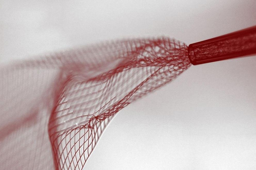 Would you implant technology inside your brain?
